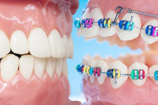 Model ortodontyczny i narzędzie dentystyczne - demonstracyjny model zębów różnych odmian zamka ortodontycznego lub aparatu ortodontycznego