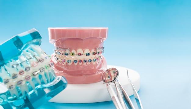 Model ortodontyczny i narzędzie dentystyczne - demonstracyjny model zębów z różnymi zamkami ortodontycznymi