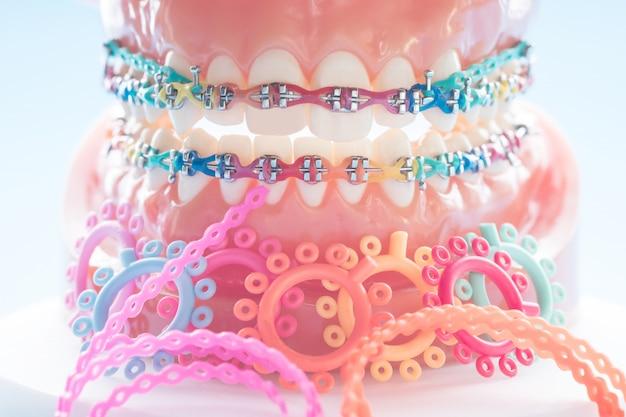 Model ortodontyczny i narzędzie dentystyczne - demonstracyjny model zębów z zamkami ortodontycznymi lub zamkiem