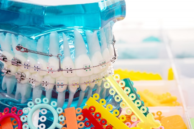 Model ortodontyczny z bliska - demonstracyjny model zębów o zróżnicowanym ortodontycznym wsporniku lub klamrze