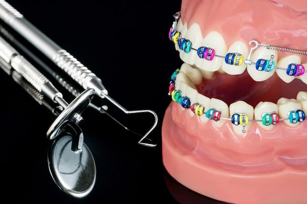 Model ortodontyczny z bliska - demonstracyjny model zębów z różnymi wariantami zamka ortodontycznego lub aparatu ortodontycznego