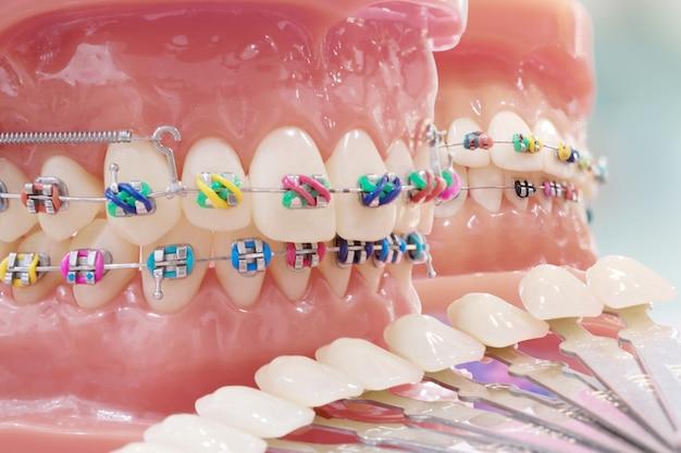 Model ortodontyczny.