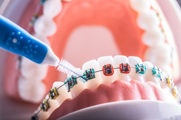 Model zęba z aparatów ortodontycznych ze szczoteczką do czyszczenia zębów międzyzębowych.