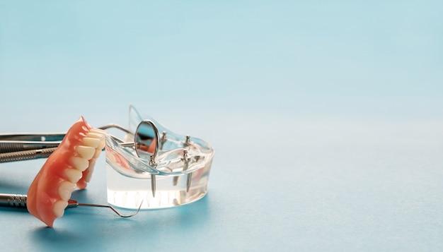 Model zębów pokazujący model mostu koronowego implantu / demonstrację zębów.