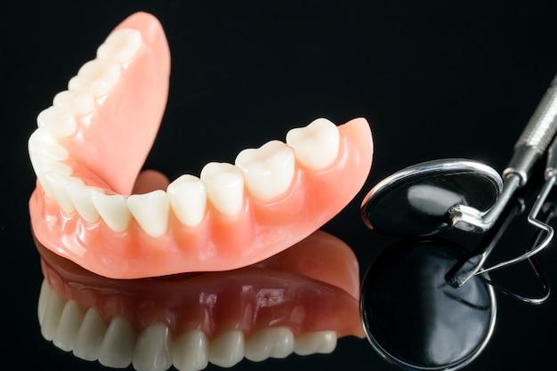 Model zębów przedstawiający model mostu korony implantu / demonstracja dentystyczna badanie zębów uczy modelu.