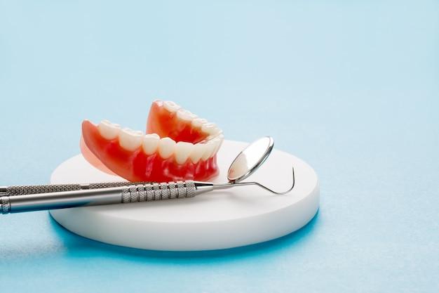 Model zębów przedstawiający model mostu korony na implantach.