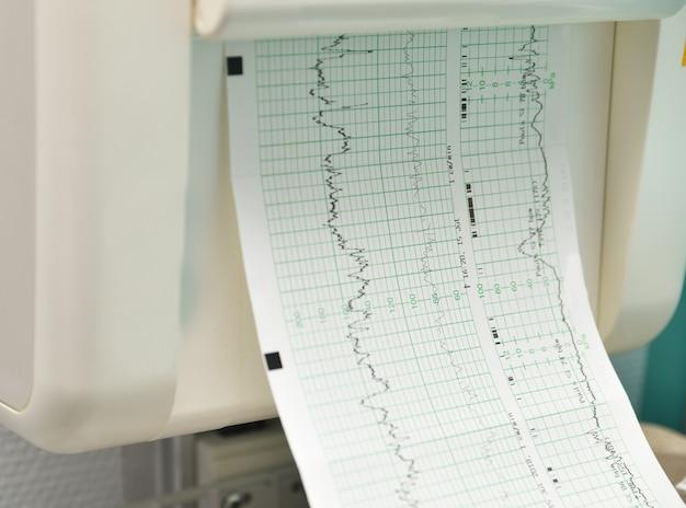 Monitor do pomiaru skurczów i bicia serca kobiety w ciąży