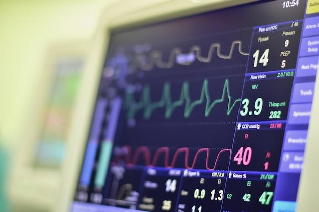 Monitor wyświetla puls serca.