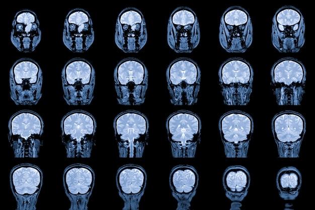 Mri brain and orbit show zajmujące lewą sitową przednią i lewą zatokę czołową