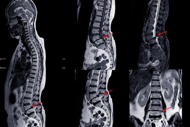 Mri kręgosłupa lędźwiowego ukazujące spondylozę szyjną z łagodnym do umiarkowanego uciskiem rdzenia kręgowego.