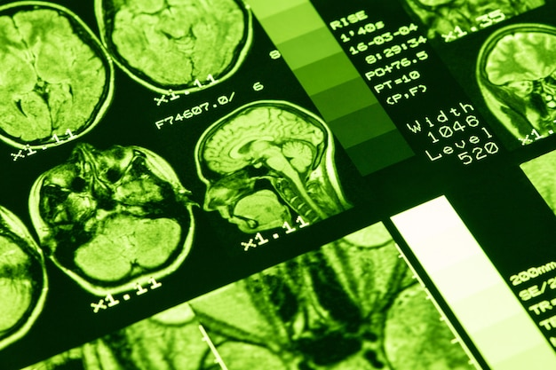 Mri mózgu zdrowej osoby z zielonym oświetleniem. rezonans magnetyczny. koncepcja opieki medycznej