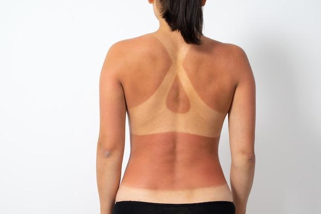 Nagie kobiece plecy z oparzeniami słonecznymi i śladami stroju kąpielowego.