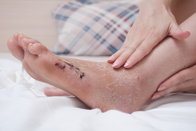 Nakładanie kremu na uszkodzoną skórę nogi. rehabilitacja po usunięciu bandaża gipsowego