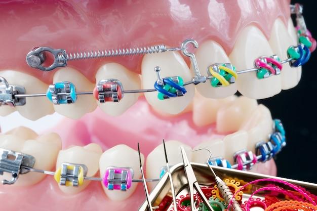 Narzędzia dentystyczne i model ortodontyczny z bliska