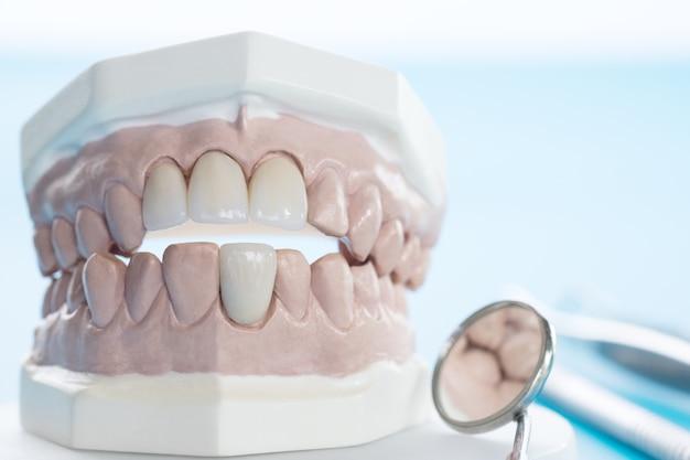 Narzędzie porsthodontic and dentist - model zębów demonstracyjnych o zróżnicowanych wymiarach porsthodontic b