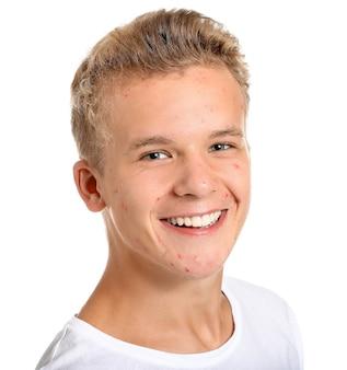 Nastoletni chłopiec z problemem trądziku na białym