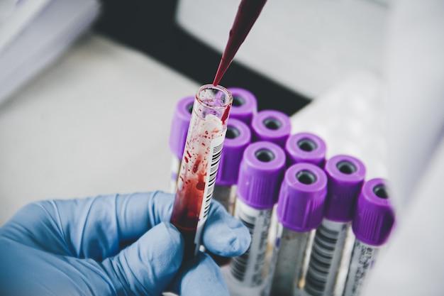 Naukowiec trzyma probówkę z próbką krwi, badania laboratoryjne. lab technik analizuje próbkę krwi w probówce w laboratorium.