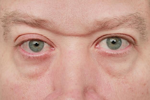 Niebieskie oczy mężczyzny patrzącego w kamerę z małymi żyłkami i zatłoczonymi brwiami