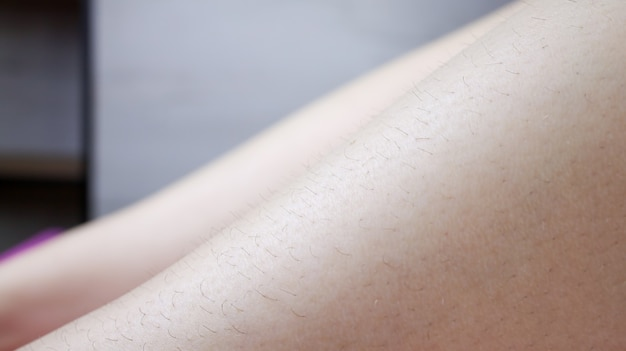Nogi modelki - zbliżenia przedstawiające czarne włosy, które są usuwane przez depilację cukrową.