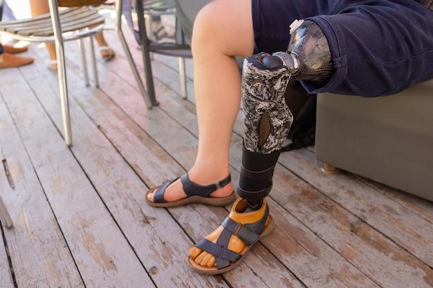 Nowe aluminiowe protezy nóg dla pacjenta po amputacji.
