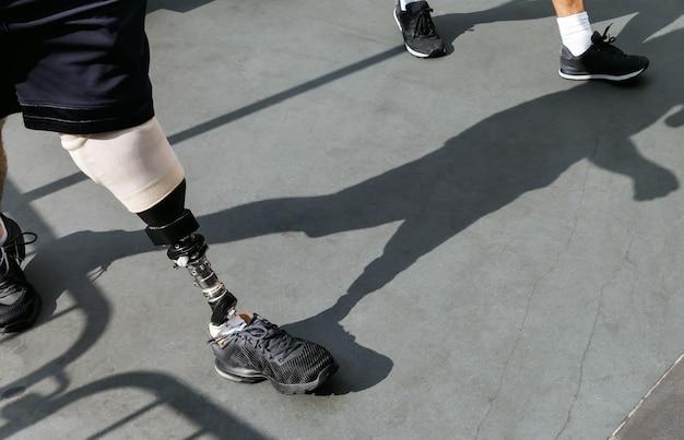 Nowoczesna proteza nogi. niepełnosprawny młody człowiek z protezą stopy spaceruje po ulicy.