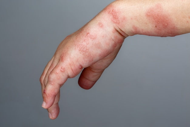 Objawy półpaśca, półpaśca lub półpaśca na ramieniu