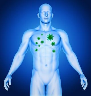 Obraz medyczny przedstawiający mężczyznę z komórkami wirusa w klatce piersiowej