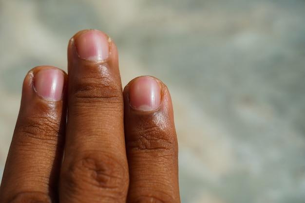 Obraz palców tam palca