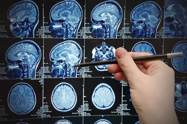 Obraz rezonansu magnetycznego mózgu (mri), badanie sondażowe