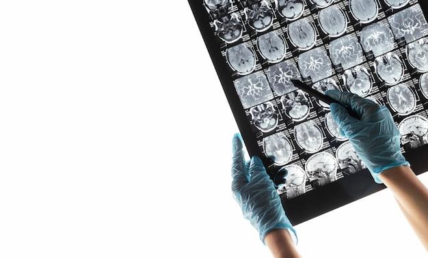 Obraz rezonansu magnetycznego mri mózgu.