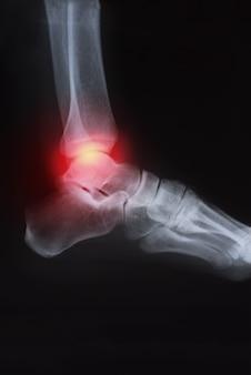 Obraz rtg stawu kolanowego z zapaleniem stawów (dna moczanowa, reumatoidalne zapalenie stawów, szambo artr