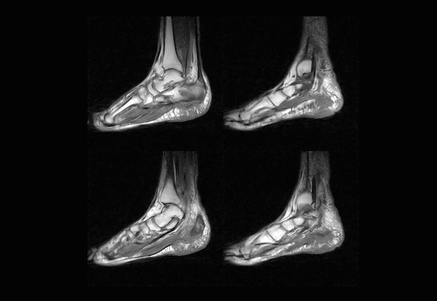 Obraz rtg stopy i tomografia komputerowa