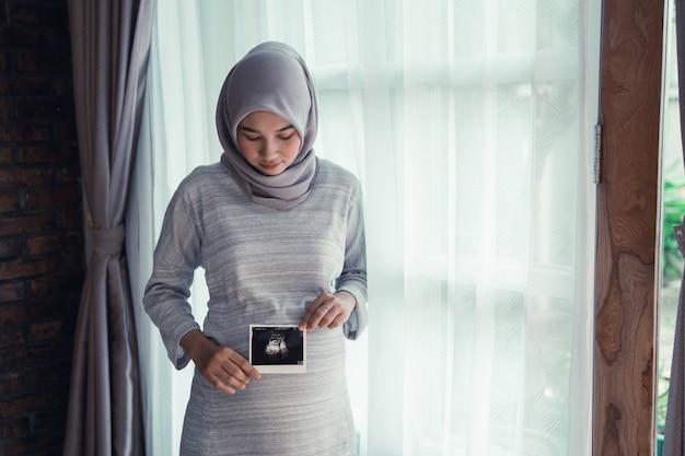 Obraz usg matki na brzuchu w ciąży