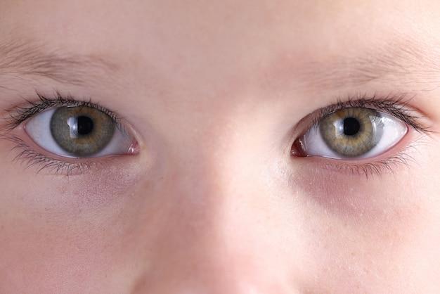 Oczy i brwi dziecka z bliska wyglądają prosto. leczenie i korekcja wzroku u dzieci
