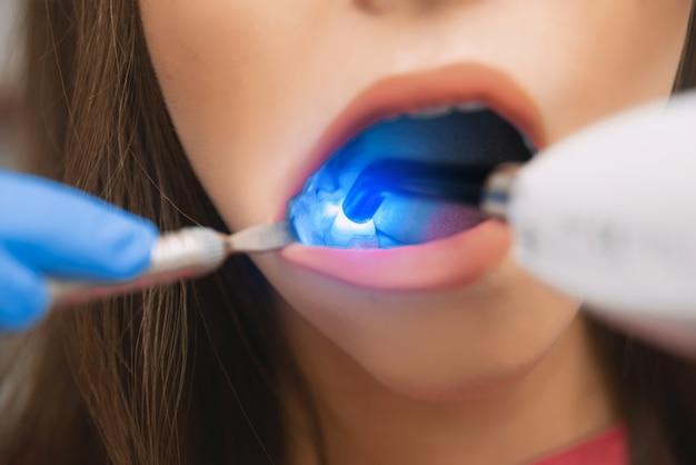 Odbudowa zębów w stomatologii za pomocą lampy fotopolimerowej