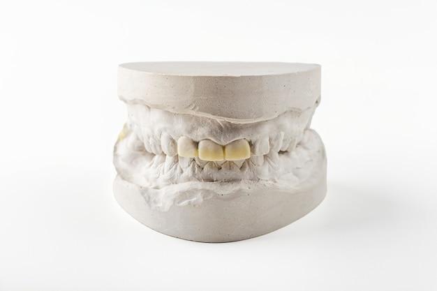 Odlew gipsowy stomatologiczny