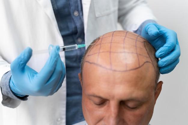 Odważny mężczyzna przechodzący proces ekstrakcji jednostek pęcherzykowych