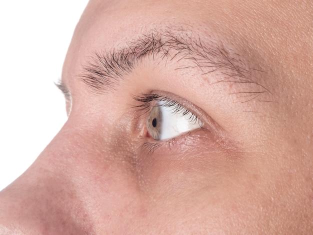 Oko mężczyzny ze stożkiem rogówki z bliska chorej rogówki.