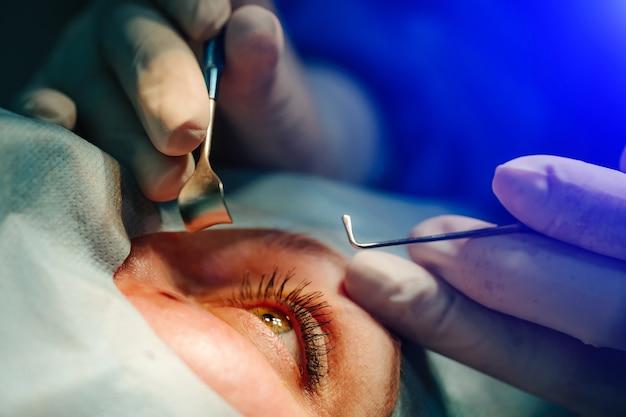 Operacja na oku. operacja katarakty. korekcja wzroku.