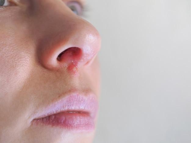 Opryszczka pod nosem