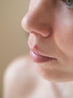 Opryszczka. zakończenie żeńska twarz, selekcyjna ostrość.
