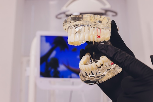 Ortodonta trzyma szczękę w dłoniach podczas treningu. opakowanie zawiera naczynka, korzenie, szpilki.