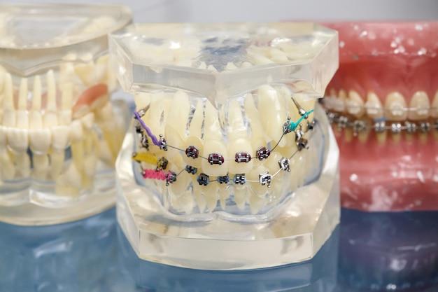 Ortodontyczny model zębów ludzkich z implantami, aparaty ortodontyczne