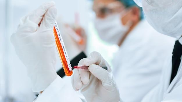 Oznakowana probówka z testem na koronawirusa w rękach asystenta laboratoryjnego