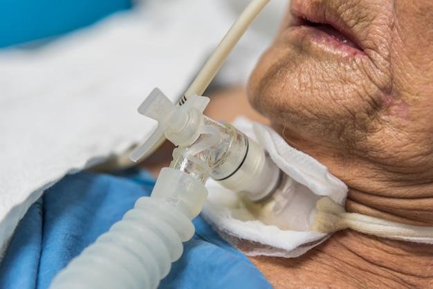Pacjent wykonuje tracheostomię i respirator w szpitalu