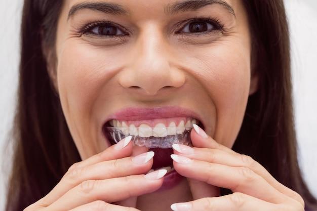 Pacjentka noszenia aparatu ortodontycznego