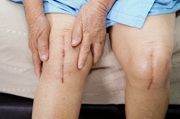 Pacjentka w podeszłym wieku pokazuje swoje blizny chirurgiczne całkowite zastąpienie stawu kolanowego.
