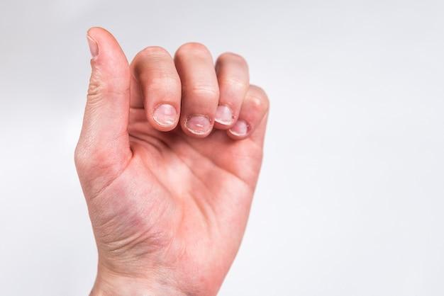 Palce z mocno lub obgryzionymi paznokciami na szarej ścianie.