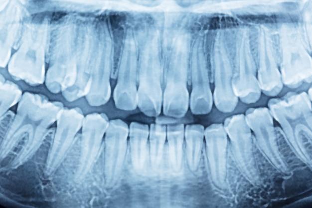 Panoramiczne zdjęcie rentgenowskie jamy ustnej i prawej strony.