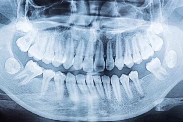 Panoramiczne zdjęcie rentgenowskie jamy ustnej lewej i prawej strony.
